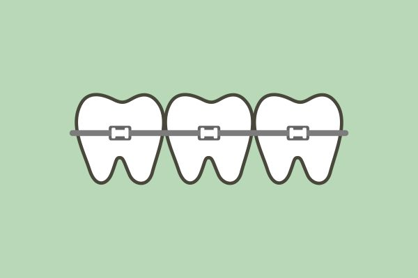 Clear Braces Guide: What To Consider When Getting Orthodontic Treatments